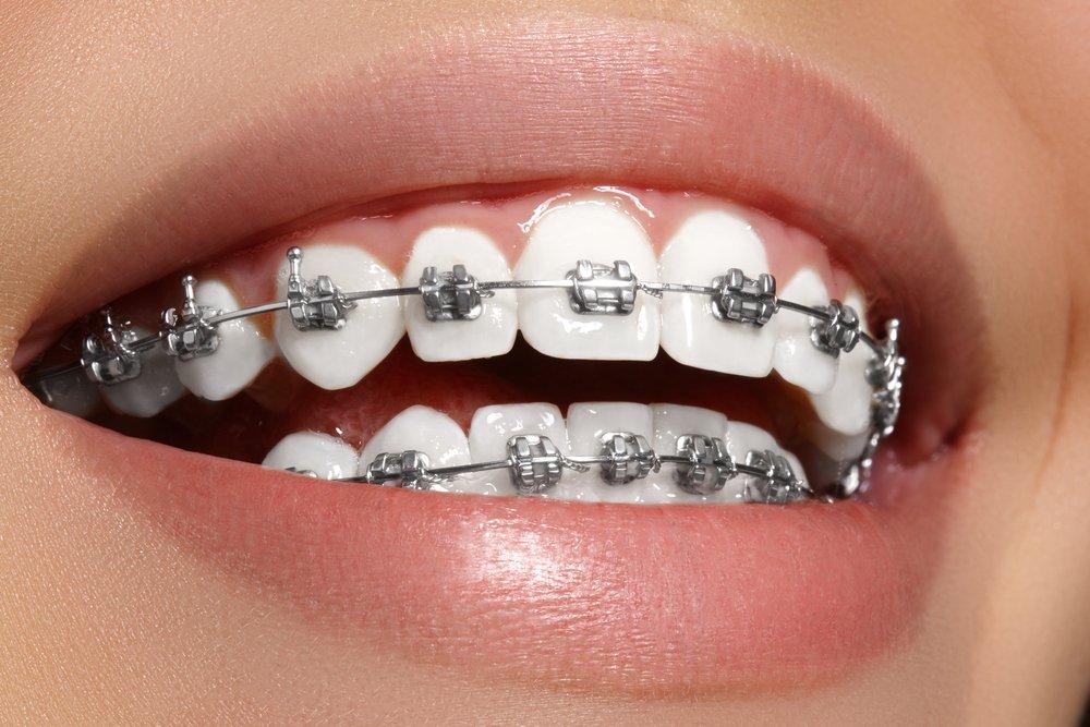 nitinol wire used in dental braces